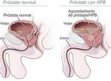 testiculos dolor2