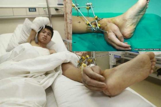 Vivió con una mano implantada en el tobillo