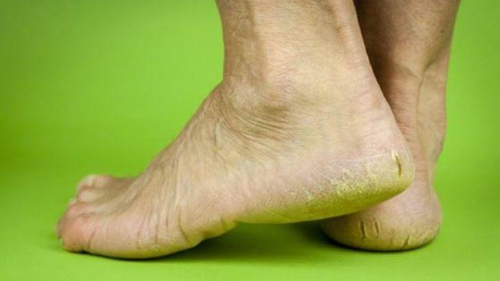 El picor en los pies a varikoze el tratamiento