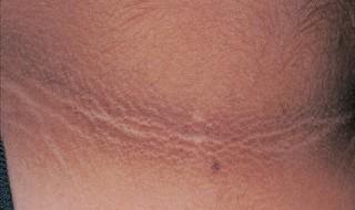 Manchas oscuras en el cuello en niños
