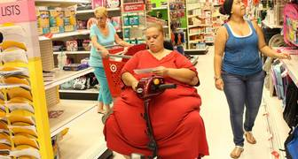 obesidad morbidad