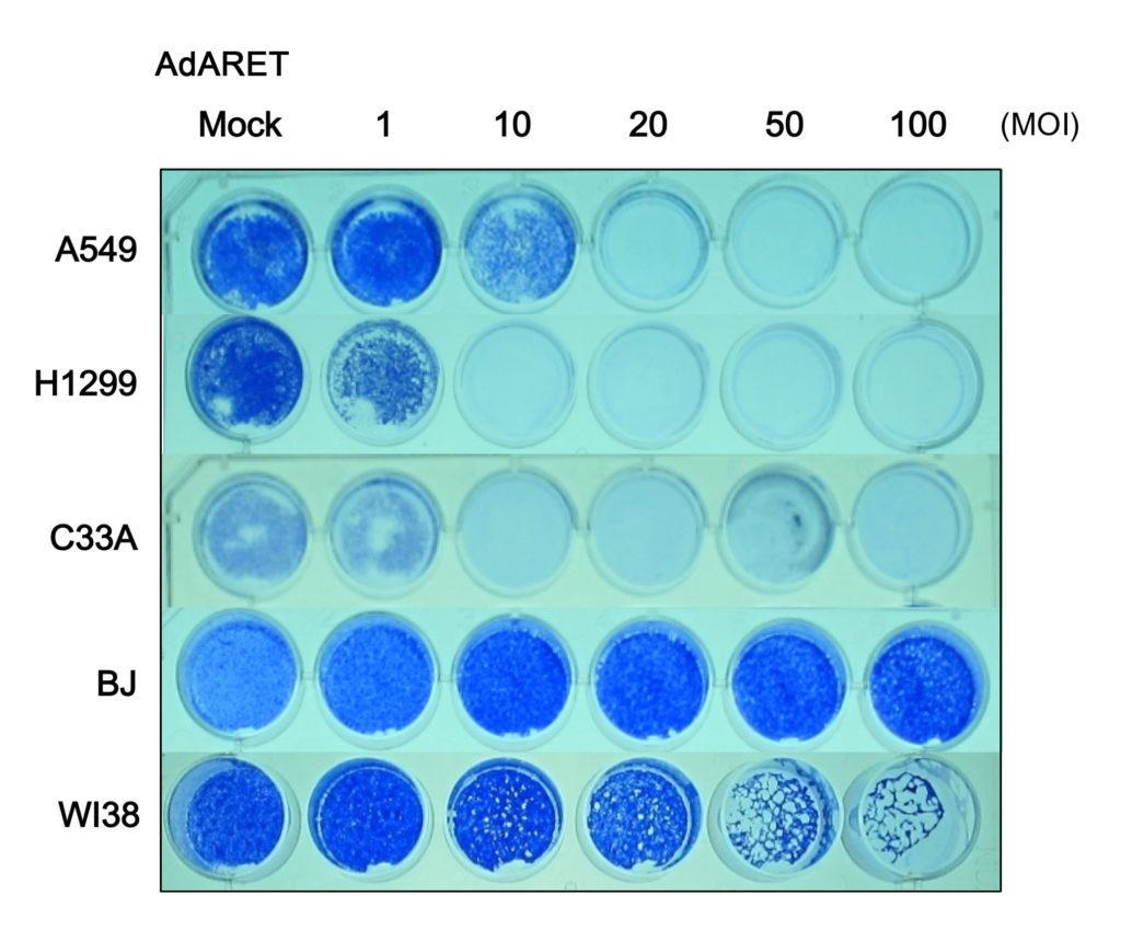 El adenovirus eliminó las células cancerosas (A549, H1299 y C33A), mientras que las células normales (BJ y WI38) no se vieron afectadas. Las células vivas se tiñeron de azul. Yohei Mikawa et al./CC BY 4.0