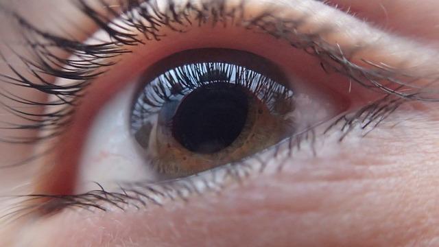 GLAUCOMA CAUSAS Y SOLUCIONES